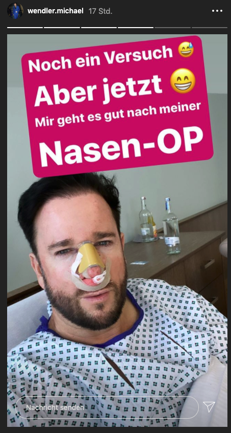 Wendler neue Nase
